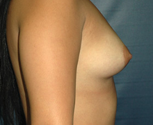 Breast Implants before 3545046