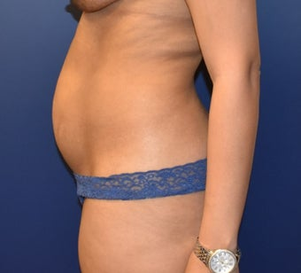 35-44 year old woman treated with Liposuction before 3466751