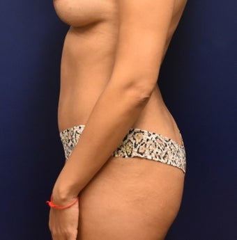 35-44 year old woman treated with Liposuction after 3466751