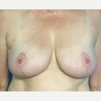45-54 year old woman treated with Breast Lift after 3164660