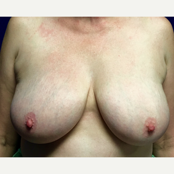 45-54 year old woman treated with Breast Lift before 3164660