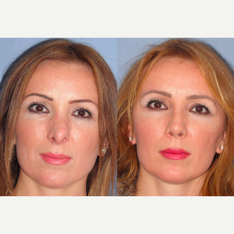 45-54 year old woman treated with Revision Rhinoplasty before 3521424