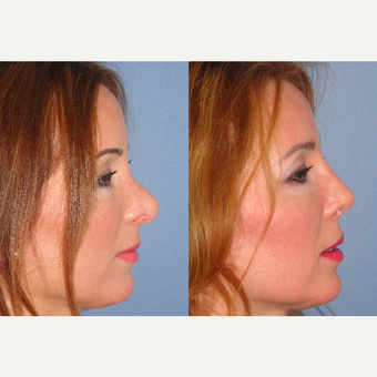 45-54 year old woman treated with Revision Rhinoplasty after 3521424