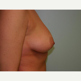 Breast Augmentation before 3560719