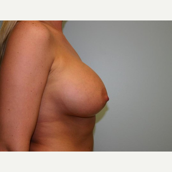 Breast Augmentation after 3560719