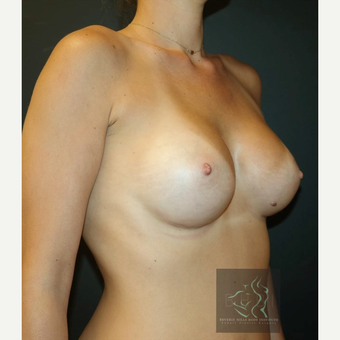 35-44 year old woman treated with Breast Implants after 3109851