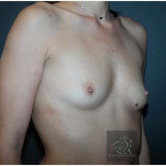 35-44 year old woman treated with Breast Implants before 3109851