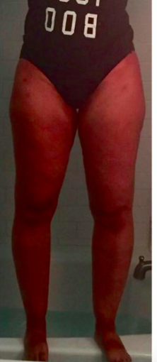 35-44 year old woman treated with Tumescent Liposuction after 2281673