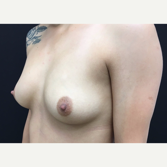 25-34 year old woman treated with Breast Augmentation before 3182230