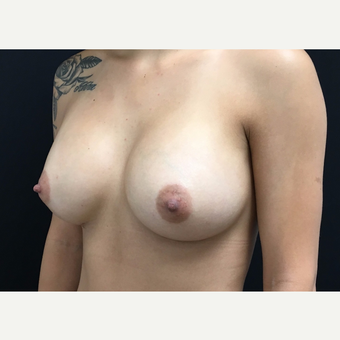 25-34 year old woman treated with Breast Augmentation after 3182230