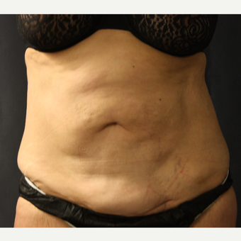 45-54 year old woman treated with SculpSure before 3299376