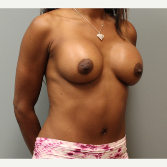 35-44 year old woman treated with Breast Augmentation after 3253875