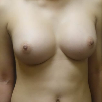 18-24 year old woman treated with Breast Augmentation after 3103986