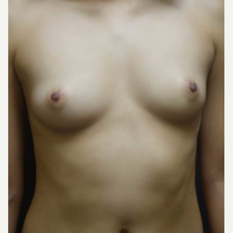 18-24 year old woman treated with Breast Augmentation before 3103986