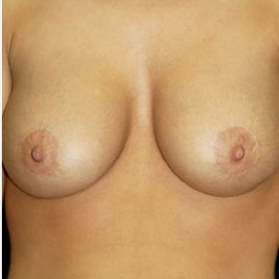Breast Augmentation after 3720781