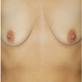 Breast Augmentation before 3720781