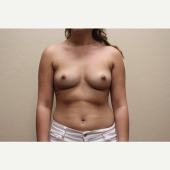 25-34 year old woman treated with Breast Augmentation before 3691975