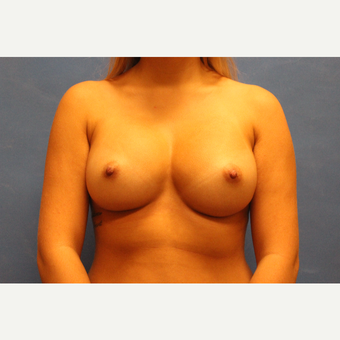 25-34 year old woman treated with Breast Augmentation after 3691975