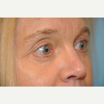 45-54 year old woman treated with Eye Bags Treatment after 3445762