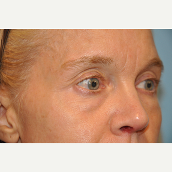 45-54 year old woman treated with Eye Bags Treatment before 3445762