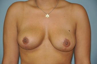 19 year old treated for large breast symptoms after 1275636
