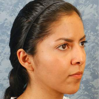 Rhinoplasty before 3124787