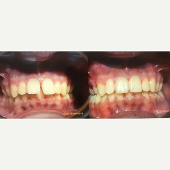 18-24 year old man treated with Braces