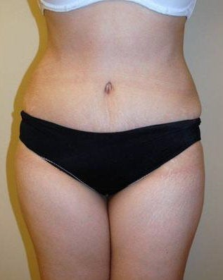 Abdominoplasty after 400242