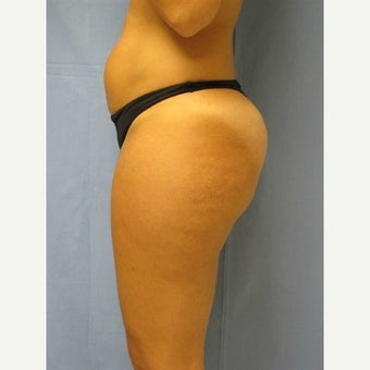 35-44 year old woman treated with Laser Liposuction before 1571813