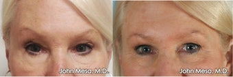 Reversing Surprised Eyebrow look  by Lowering Eyebrows with BOTOX
