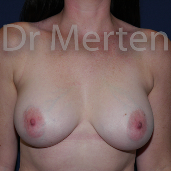 25-34 year old woman treated with Breast Implant Revision after 3830033