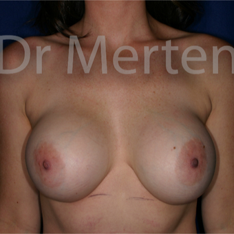 25-34 year old woman treated with Breast Implant Revision before 3830033
