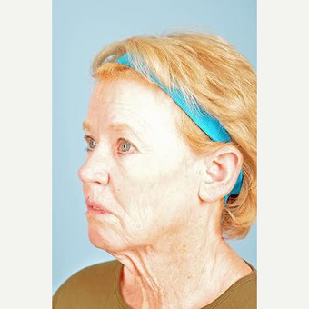 70 year old woman treated with Facelift before 3839609