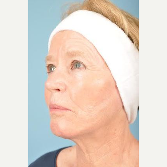70 year old woman treated with Facelift after 3839609