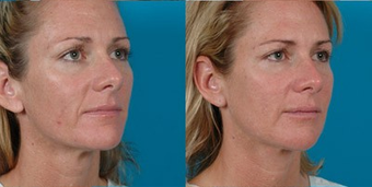 39-year-old woman treated with Facial Fat Transfer. after 574292