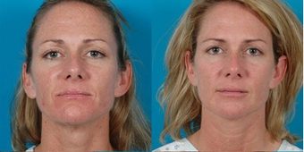 39-year-old woman treated with Facial Fat Transfer. before 574292