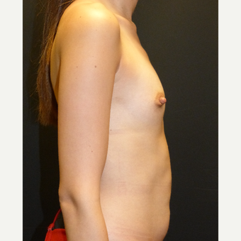 25-34 year old woman treated with Breast Implants before 3595805