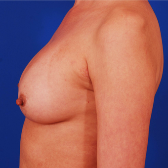 25-34 year old woman treated with Breast Implant Revision - 275cc to 400cc before 3284366