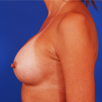 25-34 year old woman treated with Breast Implant Revision - 275cc to 400cc after 3284366