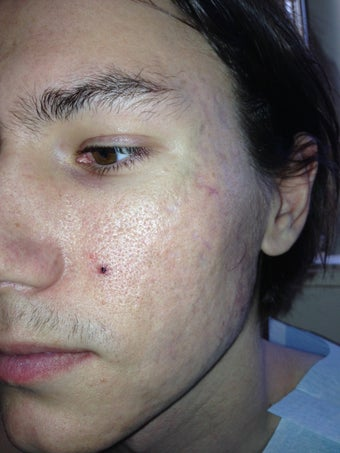 Acne Scarring improved with CO2 Mixto laser and PRP/Pelleve