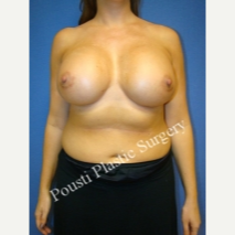 25-34 year old woman treated with Breast Implants after 3331800