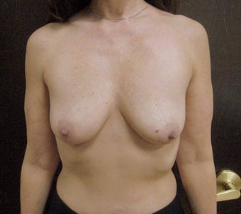 55 Year Old Female underwent Bilateral Breast Augmentation before 1027713