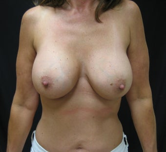 55 Year Old Female underwent Bilateral Breast Augmentation after 1027713