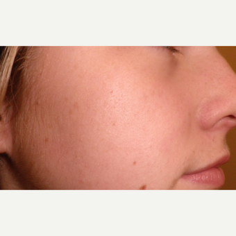 Treating acne involves the correct use of cleansers, active ingredients, and many other factors. after 3685508