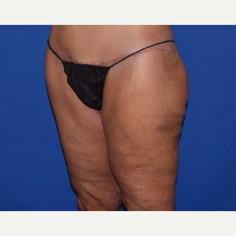 45-54 year old woman treated with Thigh Lift after 3755279