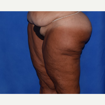 45-54 year old woman treated with Thigh Lift before 3755279