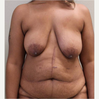 35-44 year old woman treated with Mommy Makeover before 3445864