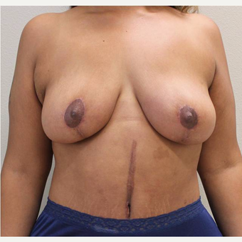 35-44 year old woman treated with Mommy Makeover after 3445864