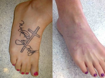 Laser tattoo removal stack treatment photo from joel for Tattoo removal maryland