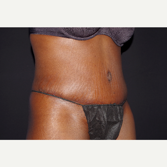 35-44 year old woman treated with Liposuction and Abdominoplasty after 3644705